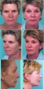 Before and After Photos of Facial Rejuvenation