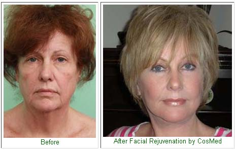 Before And After Facial Rejuvenation Pictures