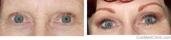 reduce wrinkles around eyes
