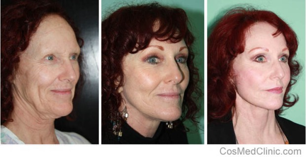 Face lift, Neck Lift Before and After Photos