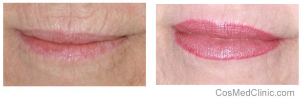 reduce wrinkles around lips
