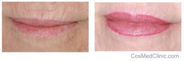 Lower Lip Discoloration Treatment
