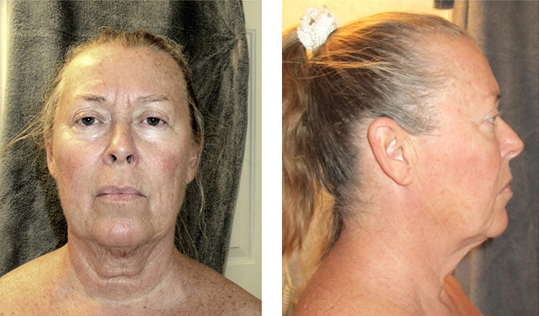 Before Face lift Photos