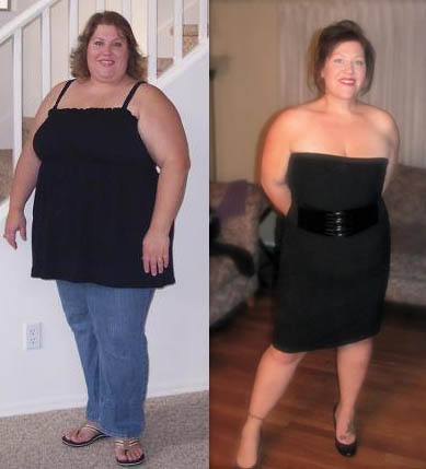 Before and After Weight Loss Surgery Mexico
