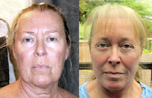 30 days after facelift mexico